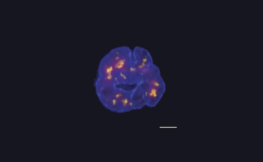 Investigadores desarrollan una nueva técnica para construir un mapa 3D del genoma humano