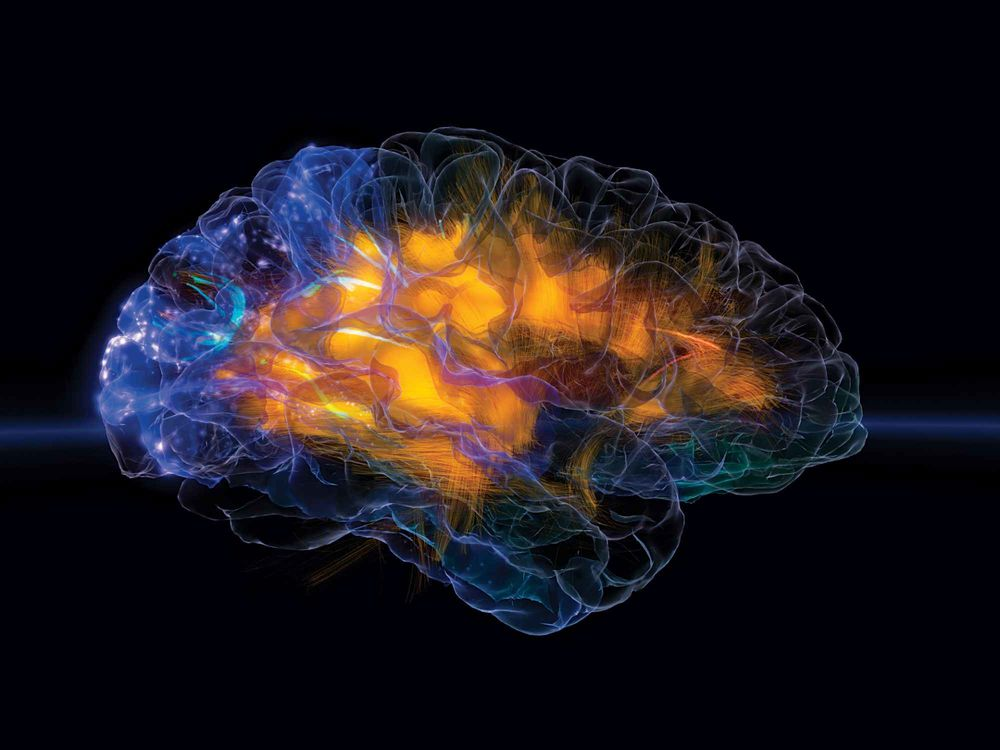 Estudio sugiere que la microgravedad causa cambios en los tejidos cerebrales de los astronautas