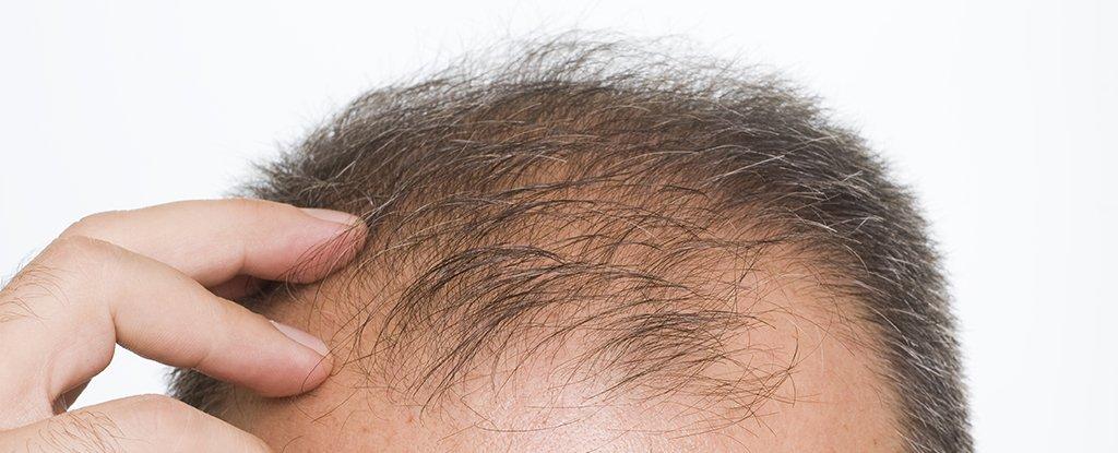Investigadores hacen crecer cabello en piel dañada y dan nuevas luces para el tratamiento de la calvicie