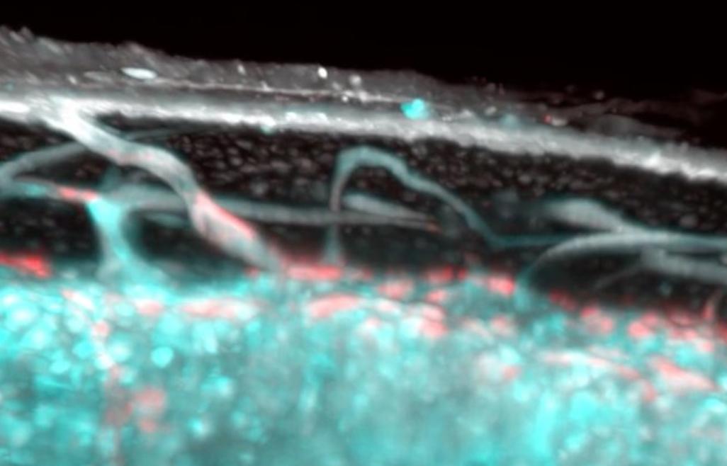 Un tipo de vaso sanguíneo totalmente nuevo ha sido descubierto en los huesos humanos