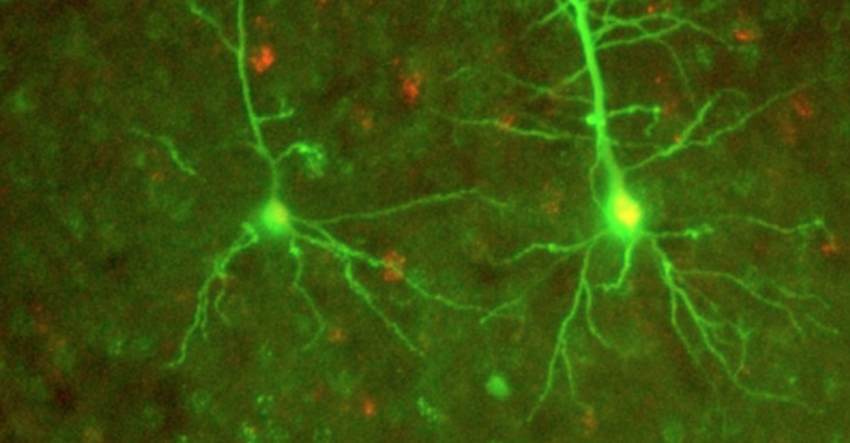 Neurocientíficos podrían haber encontrado una forma completamente nueva de comunicación neuronal