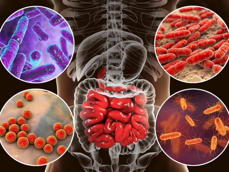 Las personas que tienen depresión tienen menos probabilidades de tener ciertas bacterias intestinales