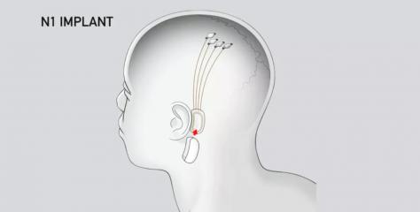 Elon Musk planea la prueba humana de la interfaz cerebro-computadora en el 2020 a través de Neuralink
