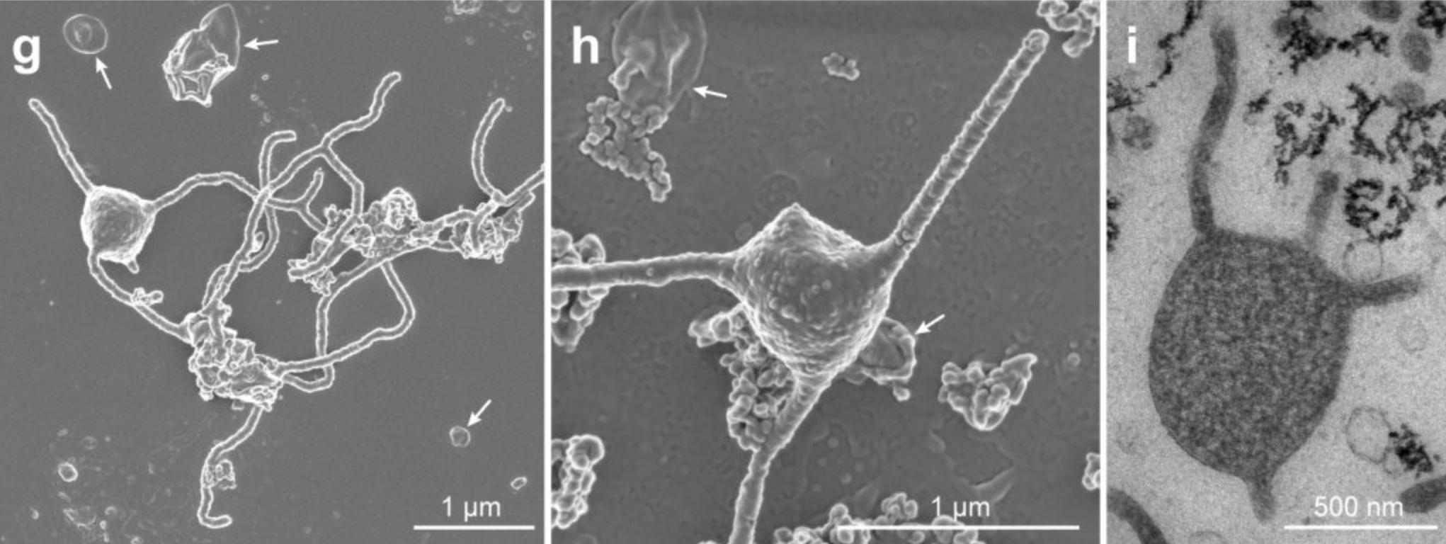 Microbio de las profundidades del mar podría responder a uno de los mayores misterios de la evolución