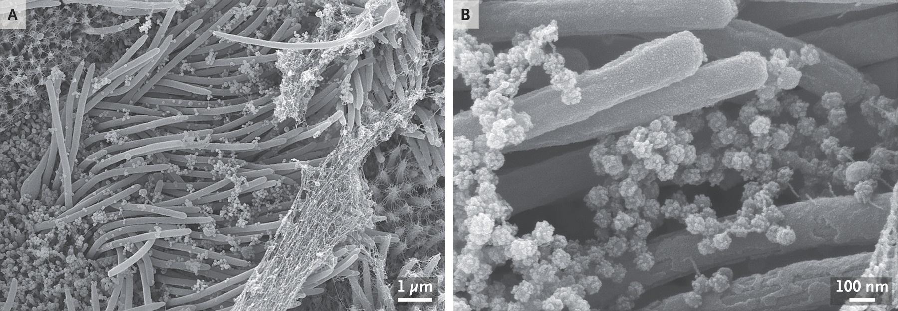 Investigadores publican impresionantes imágenes de cómo el coronavirus infecta a nuestras células
