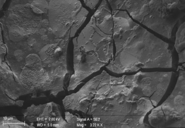 Células cerebrales cristalizadas han sido encontradas en una víctima de la erupción del Vesubio