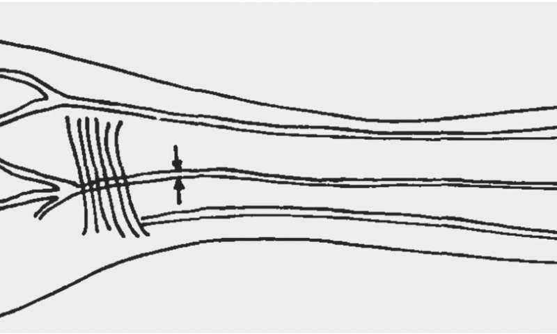 Cada vez más humanos estamos desarrollando una arteria adicional en nuestros brazos