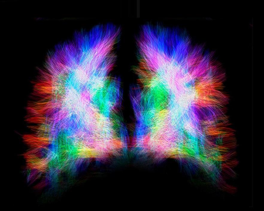 La neuroplasticidad explica cómo los lados del cerebro se pueden comunicar a pesar de no tener cuerpo calloso