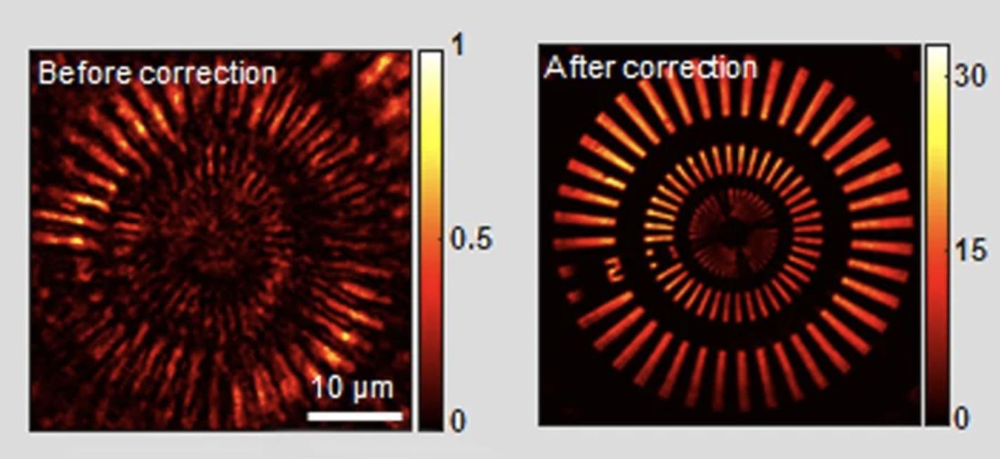 Científicos inventan un nuevo tipo de microscopio que puede ver a través del cráneo en ratones