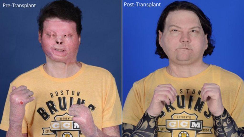 Joven de 22 años recibe el primer trasplante de rostro y manos del mundo
