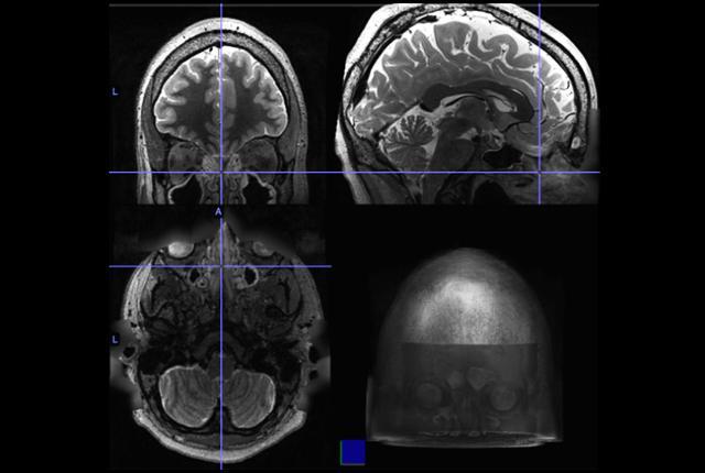 Nueva investigación relaciona a la rinosinusitis crónica con cambios en la actividad cerebral