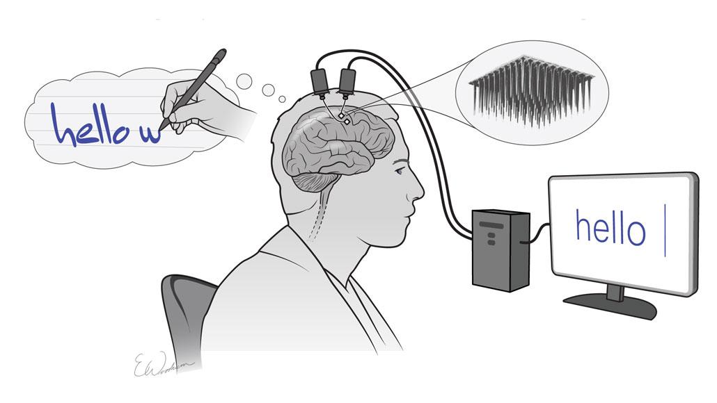 Implante cerebral permite a un parapléjico «escribir a mano»