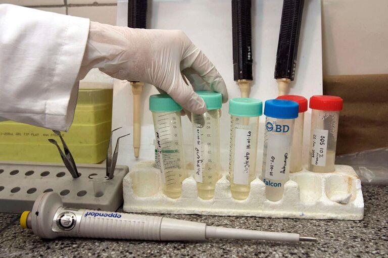 Las células cancerosas cultivadas en el laboratorio son diferentes a las de los humanos, encuentra IA