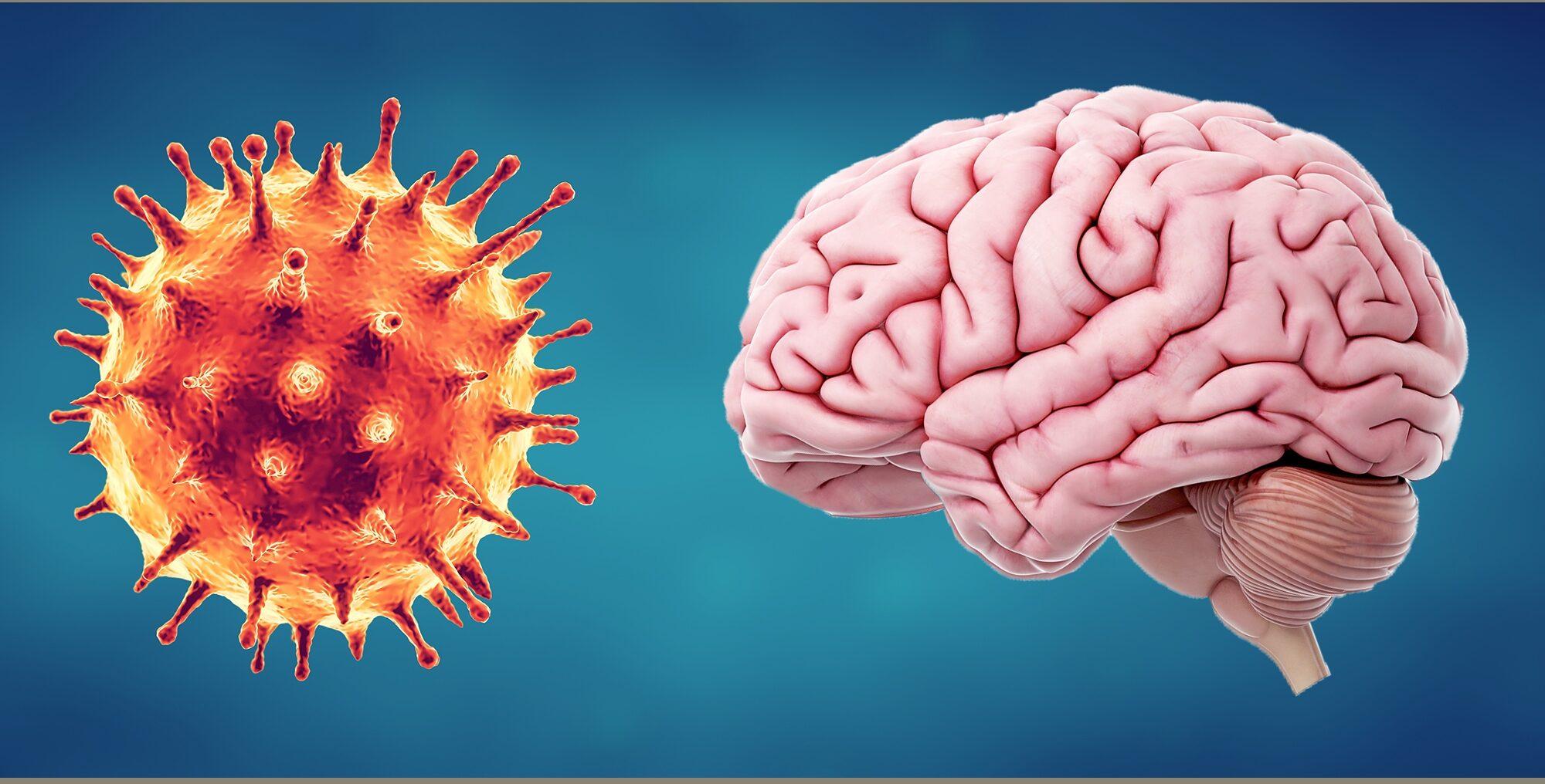 Encuentran que la inflamación cerebral causada por COVID-19 es misteriosamente similar a la del Alzheimer