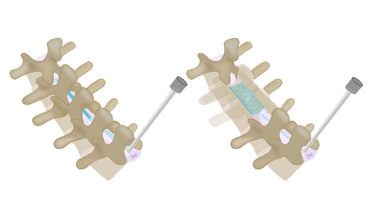 Científicos crean implantes espinales inflables que podrían ayudarnos a tratar el dolor crónico
