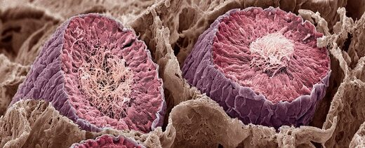 El cerebro humano tiene más en común con los testículos que con otra parte del cuerpo