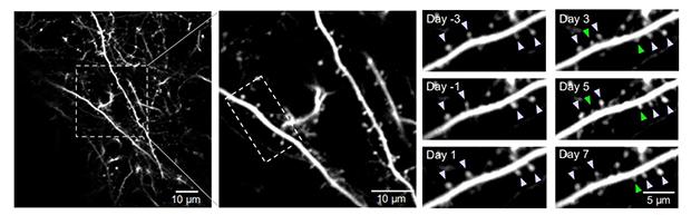 Solo una dosis de psilocibina vuelve a generar conexiones cerebrales perdidas en ratones deprimidos