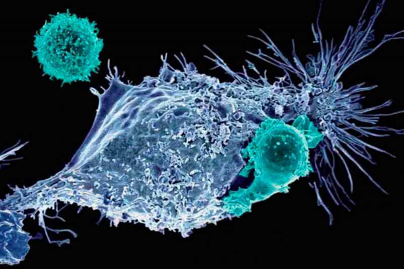 Nueva técnica de inmunoterapia con ultrasonido destruye los tumores sólidos sin afectar el tejido sano