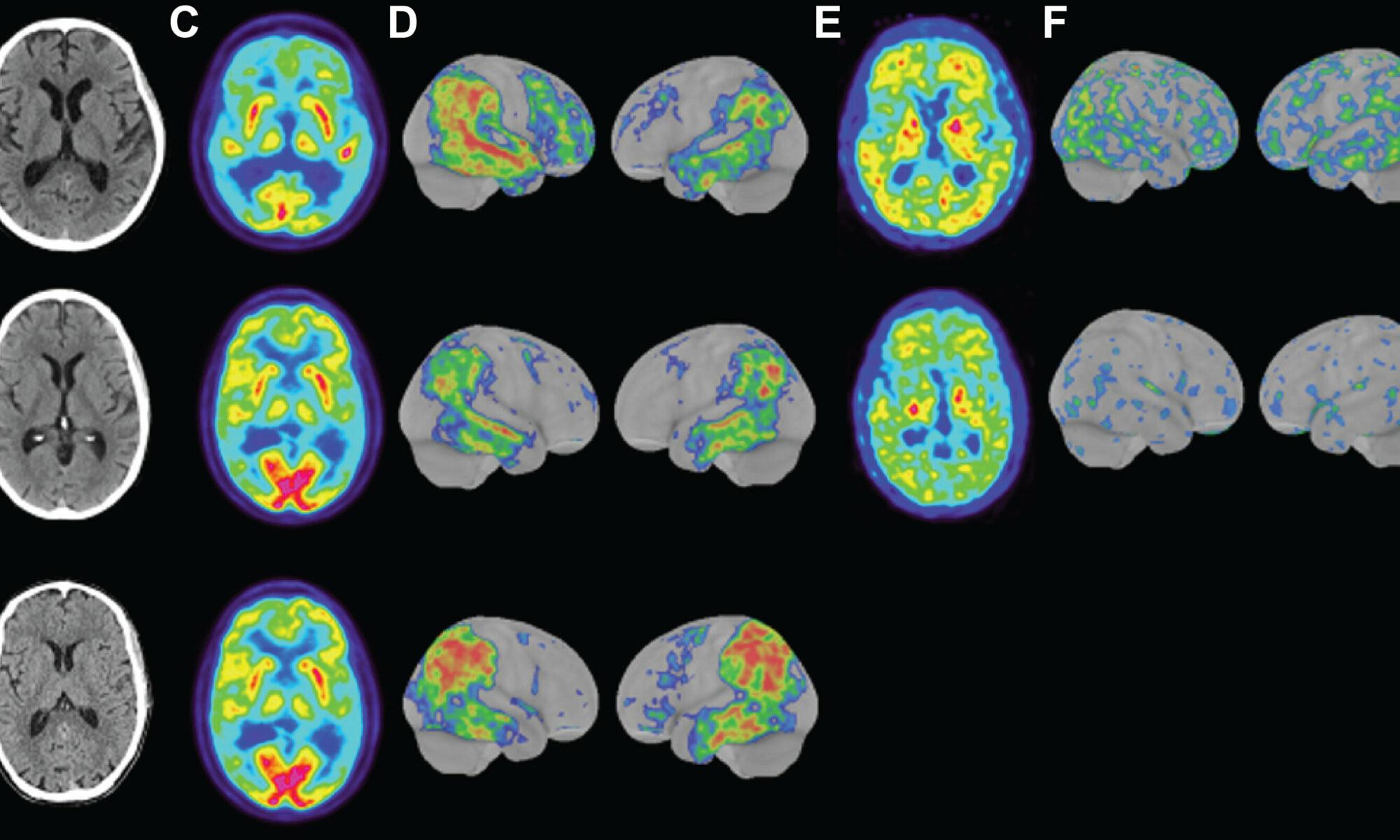 Científicos han identificado una forma rara y agresiva de Alzheimer que inicia a los 40 años de edad