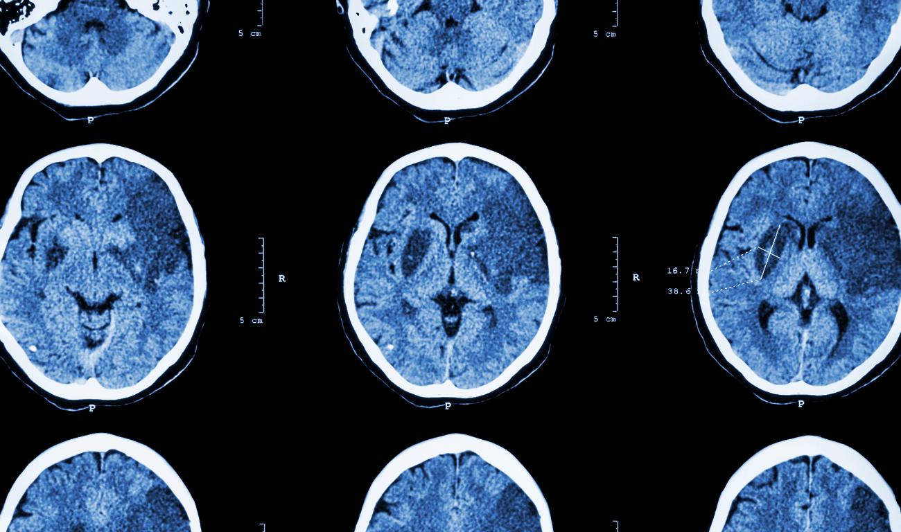 Una muestra de sangre puede revelar las posibilidades de recuperación luego de un traumatismo cerebral