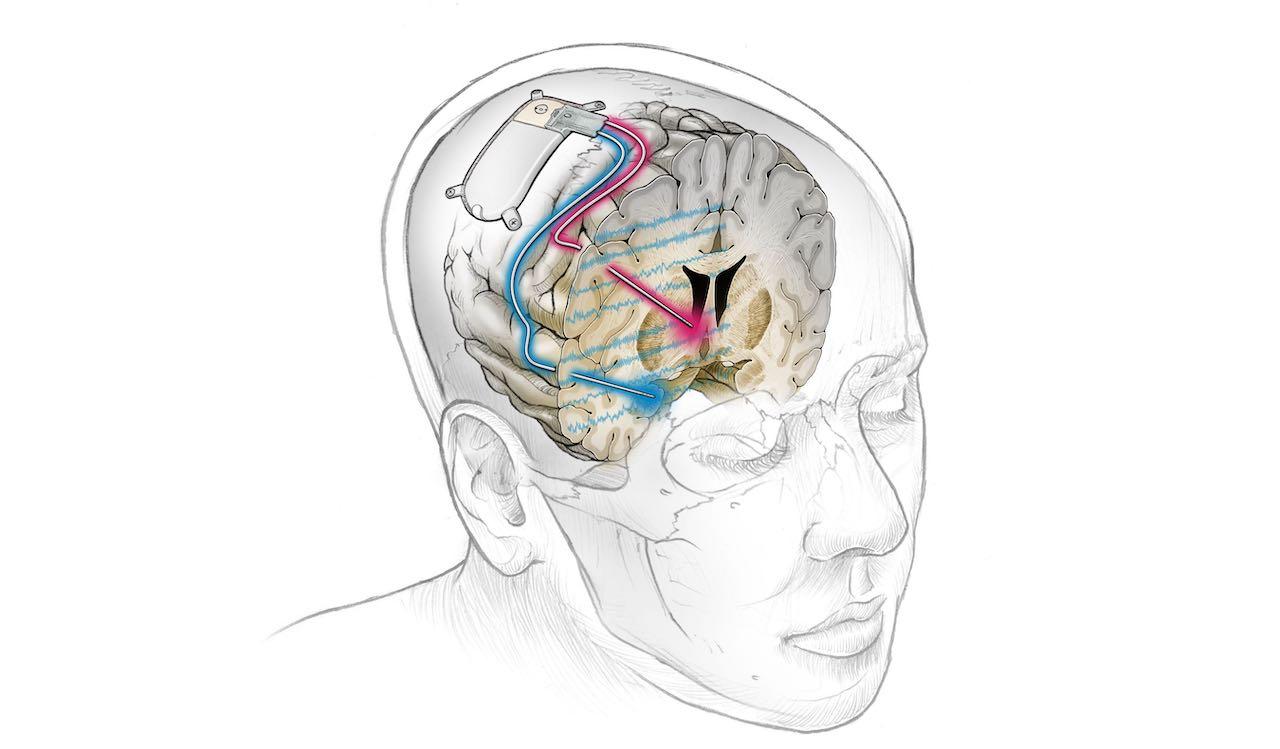 Científicos utilizan un implante cerebral para curar el trastorno depresivo resistente al tratamiento